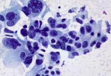 AI可以预测肺癌复发的风险