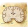 毒性蛋白如何在阿尔茨海默氏病中传播