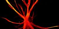 干细胞模型显示出神经背后的可能机制