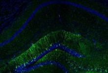 选择性激活神经细胞以恢复记忆