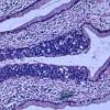 新研究证实了开放式手术对早期宫颈癌的优越性