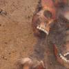 中世纪欧洲的热带病改变了与梅毒有关的病原体的历史