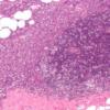 常见的胆固醇药物可能会减慢乳腺癌向大脑的扩散