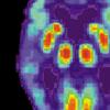 研究人员发现了有关阿尔茨海默氏病的新见解