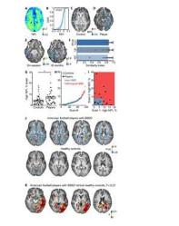 核磁共振检查以检测足球运动员的脑部损伤