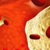 新的纳米颗粒药物组合可以帮助治疗动脉粥样硬化