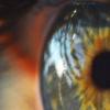 革命性的新方法可替代角膜移植