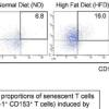 针对衰老细胞的疫苗可减轻肥胖小鼠的代谢异常