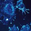 子宫内膜癌预后不良的新生物标志物