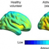 脑成像可以预测阿尔茨海默氏症相关的记忆力减退