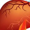 基于微生物组的新型诊断工具可以识别肝纤维化 肝硬化