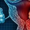 新发现的子宫内膜癌生物标志物可及早发现和治疗