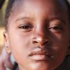 简化的急性营养不良治疗以较低的成本为儿童带来同样的康复