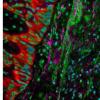 肺癌蛋白质组基于遗传发现揭示治疗策略
