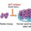 人类精子干细胞在实验室中生长 这是不育治疗的第一步