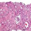 人乳头瘤病毒在前列腺癌中的潜在因果作用