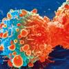 研究为结直肠癌的生长提供了新见解