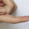 针刺血液测试用于测试小鼠的辐射暴露