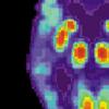阿尔茨海默氏菌斑周围会发生什么