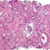 谷歌Google AI在验证前列腺癌活检的Gleason分级方面优于一般病理学家