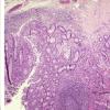 研究可能会导致更有效的治疗慢性肠炎的方法
