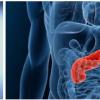 研究人员使用3D细胞培养技术重现胰腺癌组织