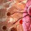 新型癌症成像系统可加快癌症检测
