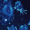 高浸润性肺癌细胞具有更长的手指