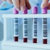 新血液测试可以检测前列腺癌并确定疾病的阶段