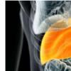 研究人员发现非肥胖NAFLD患者的临床特征差异