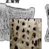 钙和维生素D摄入不足会增加患骨质疏松症的风险