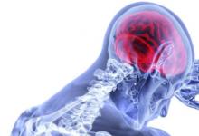 团队确定新的生物标志物以诊断和监测脑损伤
