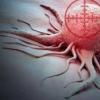新型免疫疗法显示出有望治疗晚期皮肤癌