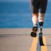 研究表明骨锚式腿假肢的持久益处