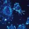 乳腺癌细胞利用携带信息的囊泡将致癌刺激物发送给正常细胞