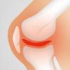 治疗骨关节炎的新方法取得进展