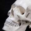 基于蛋壳的颅骨损伤手术材料
