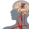在线计算器可预测患者发生缺血性中风的风险