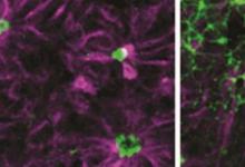 自闭症患者的神经细胞在出生前会有所不同