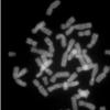女性染色体为阿兹海默氏症提供了韧性