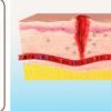 研究在理解皮肤如何愈合方面取得了飞跃