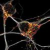 神经元通过适应新陈代谢来保护自己免受