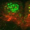 脑细胞失调可能导致发育障碍儿童的吞咽困难