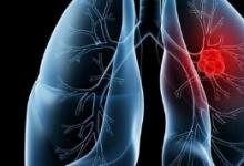 重新思考哪些免疫细胞是对抗肺癌的最佳武器