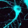研究针对与阿尔茨海默氏病相关的基因