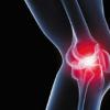 为什么膝关节骨关节炎患者会经历各种疼痛
