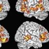 与成年人不同 儿童使用两个大脑半球来理解语言