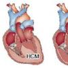 痤疮药物可能是扩张型心肌病的潜在治疗方法