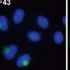 揭示大肠癌的分子基础