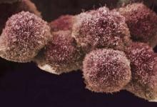 临床试验表明 维生素A联合治疗对胰腺癌患者是安全的